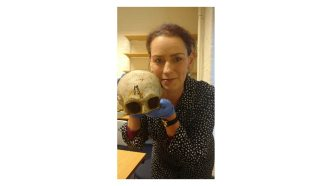 keara with burns skull cast